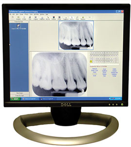 Digital Dental Xrays Bowling Green KY